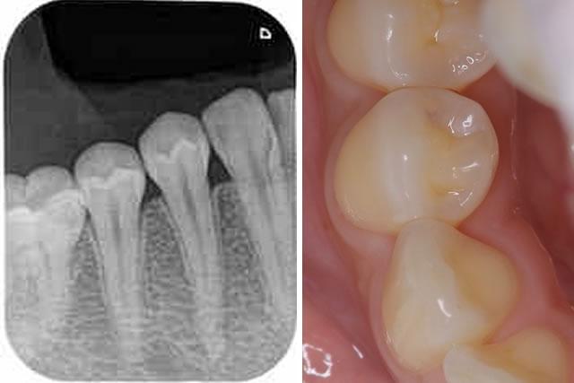 歯の中の虫歯