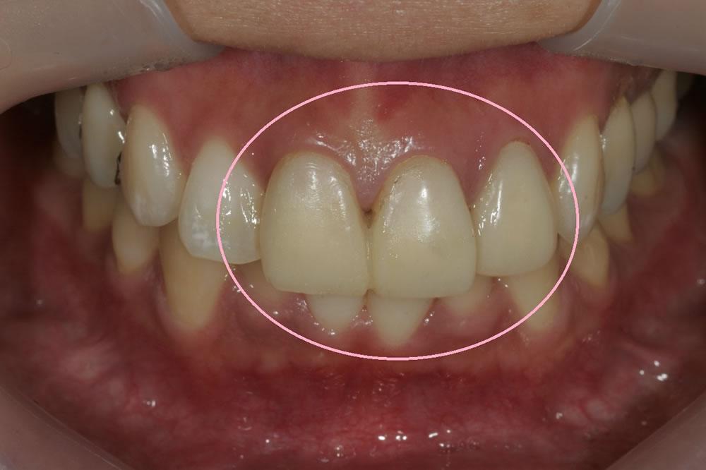 仮歯の精度