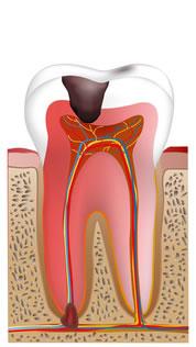 重度の虫歯